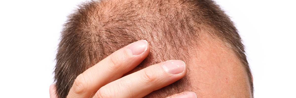 Questions About Hair Transplantation in Turkey